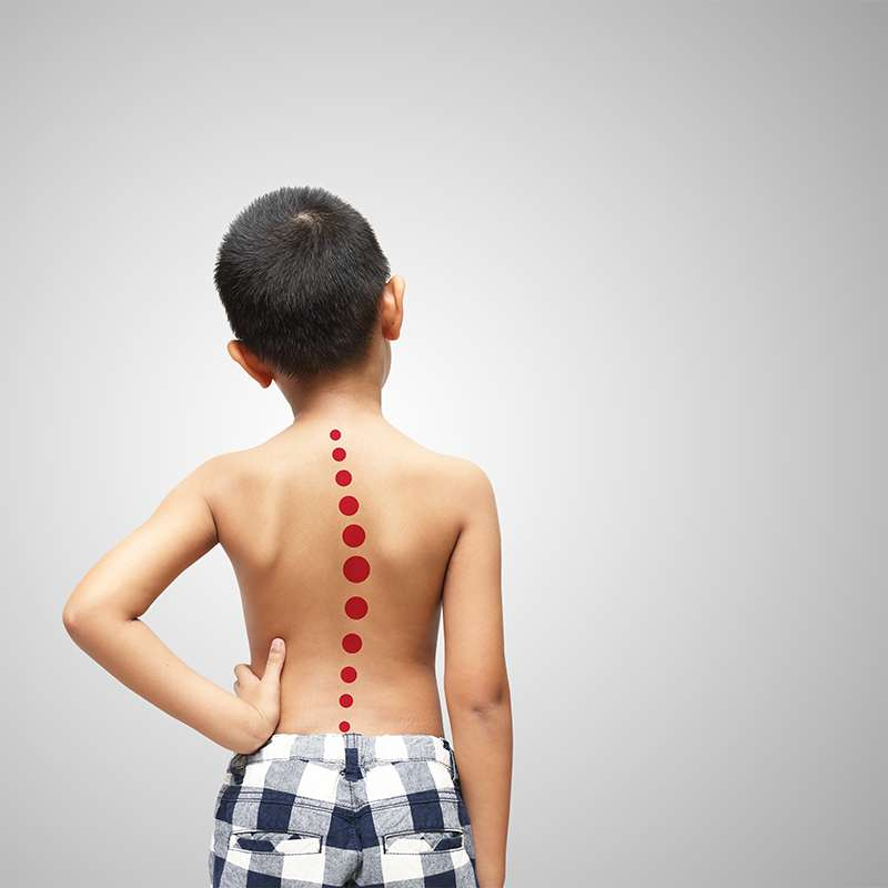 Child with early onset scoliosis